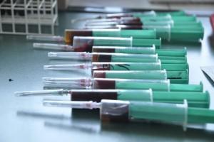 Ekspert: Zakażenia odzwierzęce są najczęściej wirusowe