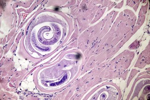 Larwy włośnia krętego obecne w tkance mięśniowej, fot. Shutterstock