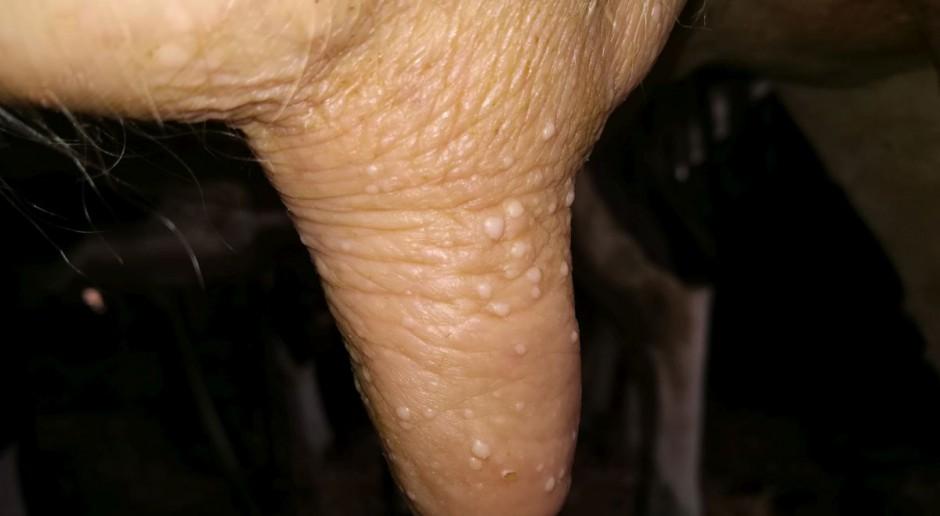 Herpeswirusowe zapalenie strzyków – przyczyna spadków produkcji mlecznej